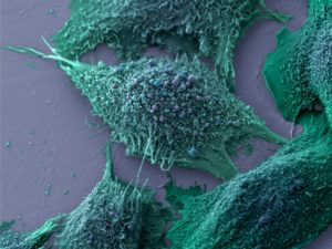 Researchers Develop Nanodiscs That Can Wipe Out Tumors
